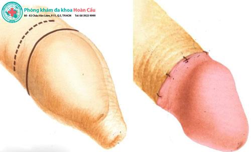 Các phương pháp cắt bao quy đầu phổ biến hiện nay