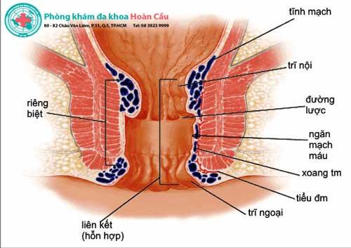 Bệnh trĩ nội và ngoại là gì?