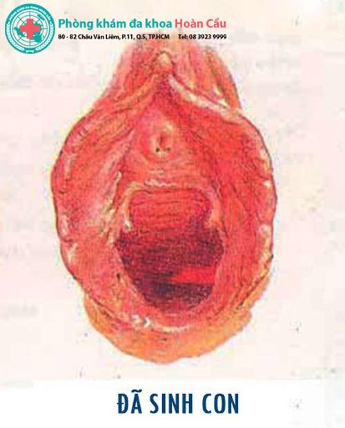Một số hình ảnh màng trinh chưa rách và bị rách
