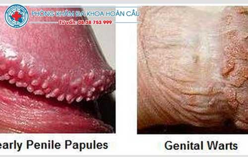 Một số hình ảnh bệnh lý chuỗi hạt ngọc ở dương vật