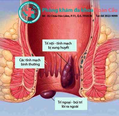 Bệnh trĩ nội và trĩ ngoại khác nhau như thế nào ?